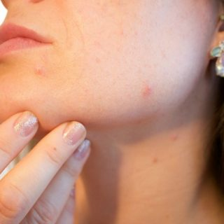 4 great ways to treat adult acne