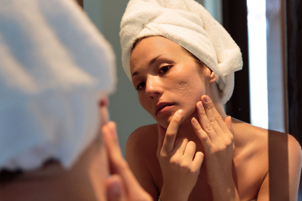 woman with acne scars and hair wrapped in towel